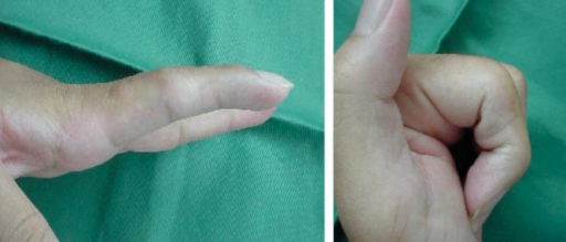 Case 2: Finger motion at the final follow-up.