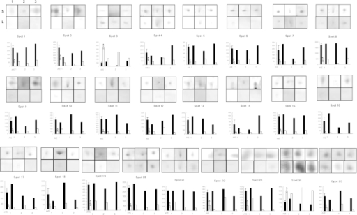 Differentially expressed spots in small and large litter size spermatozoa by 2-D electrophoretic separation.Spots in boxes (upper panels) indicate individual spots from 3 replicates of small and large litter size spermatozoa. The symbols indicate replicate and litter size (S = Small litter size, L = Large litter size, 1 = First replicate gel, 2 = Second replicate gel, 3 = Third replicate gel). Graphs (lower panels) indicate spot densities. Data represent mean ± SEM, n = 3. Protein expression ratios denoted with an asterisk were significantly different (*P < 0.05).
