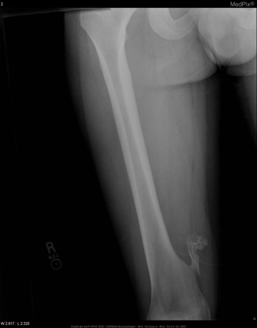PA Right femur shows pedunculated calcified mass from the right medial femur at the level of the distal 1/3 of the femoral shaft.  The mass extends superior-medially on this view and has a stalk measuring 3.5 cm x 1.0 cm and irregular ovoid shaped cap measuring 2.8 cm x 1.9 cm with chondroid calcifications.  The medullary canal is continuous with the center of the mass.  The mass appears to have fractured cleanly from the medial surface of the distal femur approximately 3.5 cm above the adductor tubercle.  No other evidence of fracture, bony or soft tissue abnormality appreciated in this view.