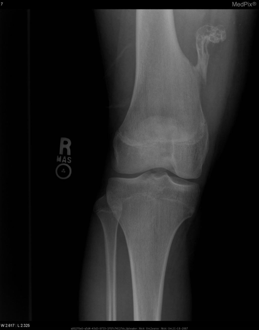 PA radiograph of the right knee shows pedunculated calcified mass from the right medial femur at the level of the distal 1/3 of the femoral shaft.  The mass extends superior-medially on this view and has a stalk measuring 3.5 cm x 1.0 cm and irregular ovoid shaped cap measuring 2.8 cm x 1.9 cm with chondroid calcifications.  The medullary canal is continuous with the center of the mass.  The mass appears to have fractured cleanly from the medial surface of the distal femur approximately 3.5 cm above the adductor tubercle.  No other evidence of fracture, bony or soft tissue abnormality appreciated in this view.