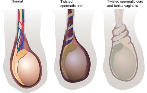testicular-torsion