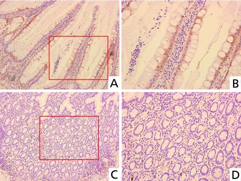 Immunohistochemical analysis of TBK1 in UC. TBK1 was mainly expressed in inflammatory colon epithelial cells of crypts (A), but hardly expressed in colon epithelial cells with weak inflammation (C). Higher magnification of A (B). Higher magnification of C (D). (Original magnification: A, C ×200; B, D ×400).