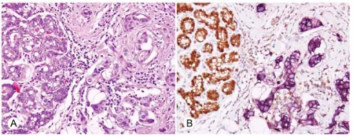 A) H&E stain of invasive ductal carcinoma, NOS (400X), showing normal cells with secretory change (left) adjacent to invasive tumor (right). B) Simultaneous immunohistochemical demonstration of STAT5a (brown) and PRLR (purple) as they are expressed in these normal and abnormal cells (400X).