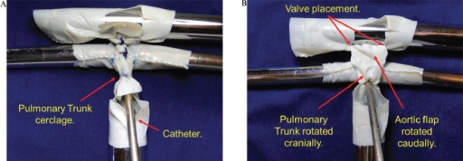 A) Through the opening of the pulmonary trunk, a 5-mm catheter is introduced towards the pulmonary branches. The pulmonary trunk cerclage is obtained by suturing a cardiac tape with 5-0 prolene around the catheter. B) The aortic flap is rotated caudally, and the pulmonary trunk flap is rotated cranially. These flaps are then sutured edge-to-edge with 6-0 prolene originating the autologous posterior neo-aortic wall. The red marks indicate where the top of the valve of the pericardium should be placed.