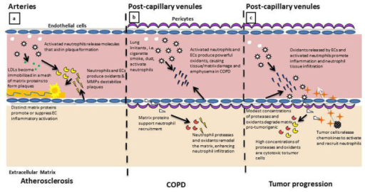 Neutrophil response to ECM proteins regulates their activity in multiple disease states. a. In the arterial development and progression of atherosclerosis, the activated neutrophil and inflamed EC produce and express proteins that contribute to the formation of the lipid plaque. Accumulation of matrix proteins, including fibrin and collagen, contribute to the immobilization and stabilization of the lipid plaque. Neutrophils and ECs subsequently release proteases and oxidants that destabilize the architecture of the plaque, inducing plaque rupture and immobilization. b. In the post-capillary venule of the lung, neutrophil and EC activation can result in the production of oxidants that damage the surrounding tissue matrix. As neutrophils enter into the remodeled matrix, they continue the process of protease release and continue to remodel the microenvironment, facilitating localized inflammation and irritation, symptomatic of COPD. c. Inflammation in the post-capillary venule contributes to the progression of tumor metastasis. Microvascular EC are activated by tumor-released chemokines to induce neutrophil adhesion and tissue infiltration. Neutrophils release oxidants and proteases that remodel the microenvironment, aiding in tumor cell recruitment to pre-metastatic tissues.