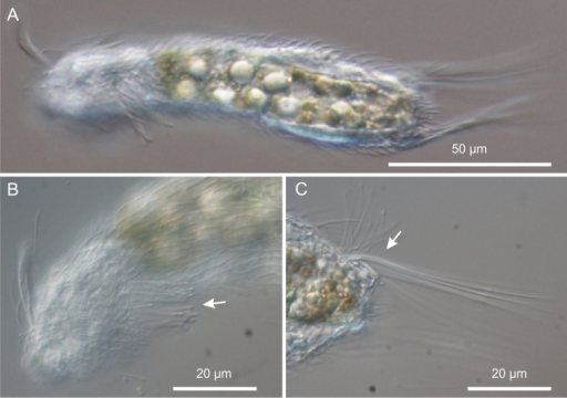 Neogossea acanthocolla. DIC photomicrographs. A habitus B anterior region showing the group of thick spines on the neck (arrow) C close-up of the posterior region of the trunk showing a tuft of long, barbed spines (arrow).