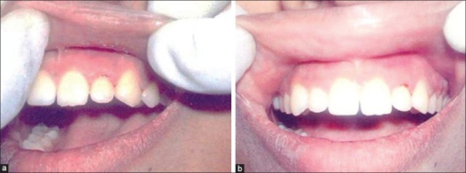 Gingival condition at ovulation time point of menstrual cycle (Gingival index score = 2); (a) Lateral view and (b) frontal view
