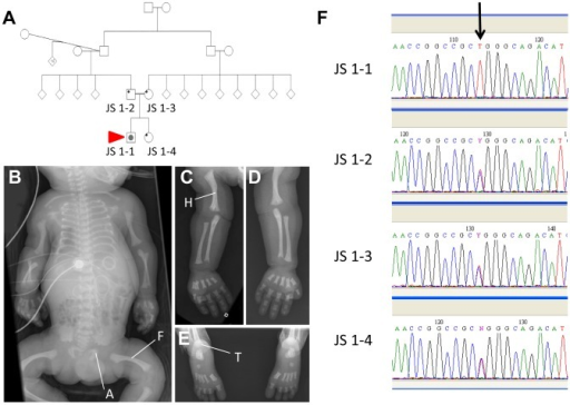 "An IFT140 mutation identified in a Jeune Syndrome patient.Family pedigree showing the relationship between JS1-1, JS 1-2, JS 1-3 and JS 1-4 (A; red arrow indicates the proband). Whole body (B), right (C) and left (D) upper limb and feet (E) radiographs from JS1-1. Note the short ribs, short long bones with bowed humeri and femora, ""trident"" appearance of the acetabular roofs and metaphyseal irregularity (B), short long bones with metaphyseal cupping and bowed humerus (C and D), and metaphyseal cupping and advanced tarsal bone ossification for age (E). A, acetabulum; F, femur; H, humerus; T, tarsus. Sequence chromatogram identifying the C>T homozygous mutation in JS1-1 (F; arrow), and heterozygous mutation in immediate family members."