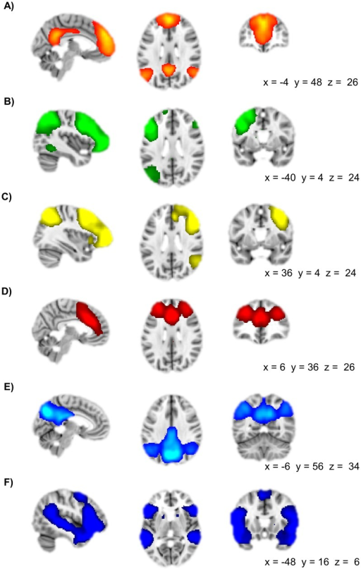 Spatial characteristics of brain networks included in t | Open-i