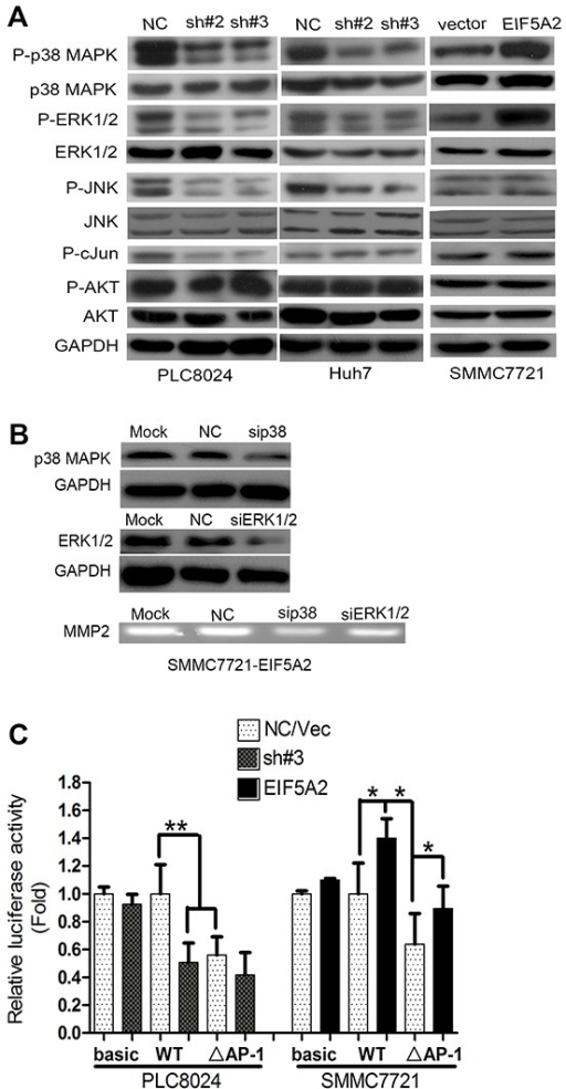 EIF5A2 induces MMP-2 transcription by activating p38 MAPK and JNK/c-Jun pathways(A) Immunoblot for indicated mediators of MAPK pathway signaling in cells transfected with NC or sh#3 or control vector or EIF5A2 over-expression vector. (B) MMP-2 activity in TCM examined by gelatin zymography. TCM was collected from cells transfected with NC or si-RNA targeting p38 MAPK or ERK1/2. (C) Analysis of luciferase activity using MMP-2 promoter luciferase reporter vector in indicated cells. Basic: pGL3-basic; WT: wild type promoter; ΔAP-1: deletion of AP-1 binding site (**, P<0.01; *, P<0.05, T test).