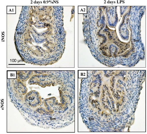 Immunochemical detection of iNOS and eNOS expression in the mouse Fallopian tubes after injection of LPS for two days. (A1,A2) iNOS expression in Fallopian tubes of mice treated with 0.9% NS compared with LPS (1 mg/kg body weight). iNOS expression was stronger in LPS-treated group and present in both the cytoplasm and nuclei of the epithelial cells; (B1,B2) eNOS expression in Fallopian tubes of mice treated with 0.9% NS compared with LPS. eNOS was also expressed in both the cytoplasm and nuclei of the epithelial cells, but there was no obvious change in eNOS expression in the Fallopian tubes of the LPS-treated mice compared to the 0.9% NS. Epi, epithelial cells; Sm, smooth muscle cells; NS, normal saline. Scale bar = 100 µm.