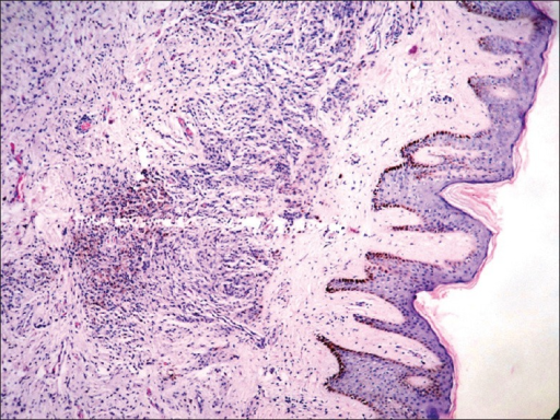 Nests of nevus cells containing melanin pigment in dermis showing maturation into spindle-shaped cells (H and E ×40)