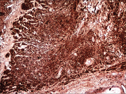 On immunohistochemistry, both nests of nevus cells and neural component stained with S100 (S100, ×40)