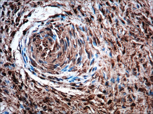 On immunohistochemistry, tactile bodies are seen stained with S100 (S100, ×100)