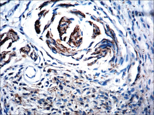 On immunohistochemistry, only neural elements stained with neuron-specific enolase (NSE, ×100)