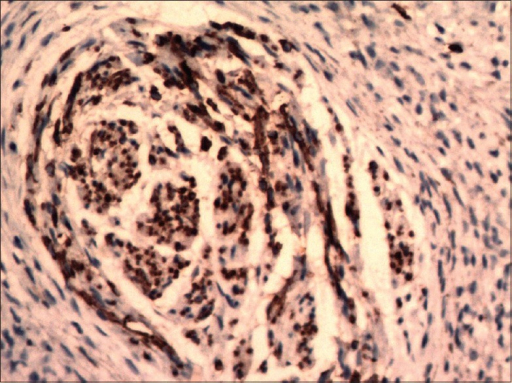 On immunohistochemistry, CD 57 stained only the neural component (CD 57, x200)
