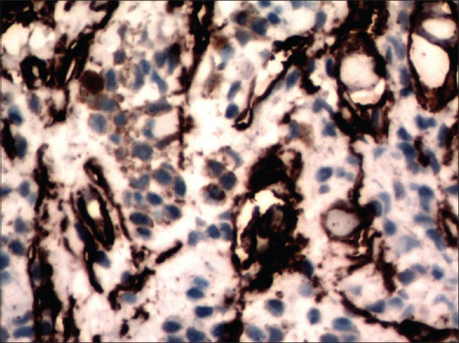 On immunohistochemistry, CD 34 stained only the blood vessels and stromal cells (CD 34, ×400)
