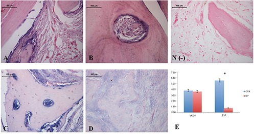 Immunohistochemical analysis of VEGF and BSP expression in native and necrotic bone samples. A) VEGF expression in bone tissue specimens obtained from healthy donors. B) VEGF expression in bone tissue specimens obtained from BP-treated donors. C) BSP expression in bone tissue specimens obtained from healthy donors. D) BSP expression in bone tissue specimens obtained from bisBP-treated donors. N(-) negative control. E) Graphic representation of VEGF and BSP positive area % (± SD) densitometric analysis determined by direct visual counting of ten fields (mean values) for each of five slides per specimen at 20x magnification; blue bars, native bone samples; red bars, necrotic bone samples; *P<0.05.