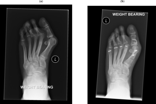 (a) Pre-operative forefoot with significant hallux valgus and disloacation of the 2nd and 3rd MTPJs, (b) Post-operative forefoothaving undergone joint preserving Scarf and Akin osteotomy with incomplete correction combined with lesser metatarsal Weil'sosteotomies.