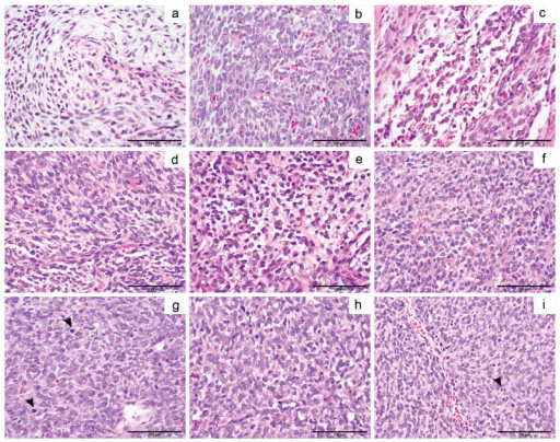 Histological features of BCOR-CCNB3 positive sarcomas. (a) and (b) Spindle cell neoplasm (T290) in a myxoid to edematous matrix with more ovoid cells in (b). (c) Undifferentiated sarcoma (T151) with angulated and ovoid cells. (d-f) Pre-treatment (d, e) and the post-treatment relapsed specimen (f) from T150 shows angulated, spindle, and round cells with similar morphology. (g-h) The pre-treatment sample (g) for T149 shows similar features compared to the post-treatment relapse (h) after 8 years off therapy (arrowheads scattered mitoses). (i) T236 with histologic features of undifferentiated sarcoma similar to the other BCOR-CCNB3 cases. Scale bars, 100 um.