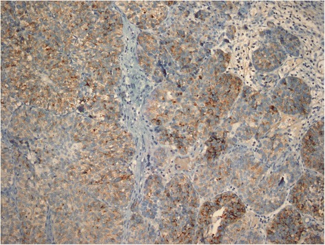 GPC3 staining in high grade invasive UC, with a combined score 5 (immunoperoxidase, x200 magnification).