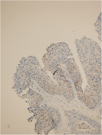 GPC3 staining in low grade non-invasive papillary UC, with a combined score 3 (immunoperoxidase, x200 magnification).