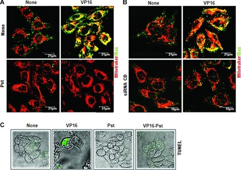 Cathepsin D triggers Bax-mediated permeabilization of mitochondria and TUNEL-positive cell death in response to VP16. A2780 cells were let adhere on coverslips and pre-incubated for 16 hrs with Pst (A) or sham-transfected or transfected with a CD-specific siRNA (B). The cells were then treated or not with VP16 for 24 hrs and thereafter processed for mitotracker staining and Bax immunofluorescence. Both genetic down-regulation and pharmacological inhibition of CD prevented the activation and oligomerization of Bax onto mitochondria induced by VP16. (C) A2780 cells adherent on coverslips were exposed for 24 hrs to VP16 and then stained with the TUNEL technique that demonstrated the presence of nicked DNA in apoptotic cells. Images are representative of three separate experiments. Selected fields are shown. Note that only cells still adherent on coverslips were labelled (detached cells were discarded).