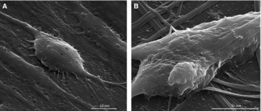 Scanning electron microscopy images of MSCs before and after the treatment with colloidal suspensions: (A) control (untreated) MSCs cells (3000×), (B) MSCs cells treated with MNPs suspension (5000×).
