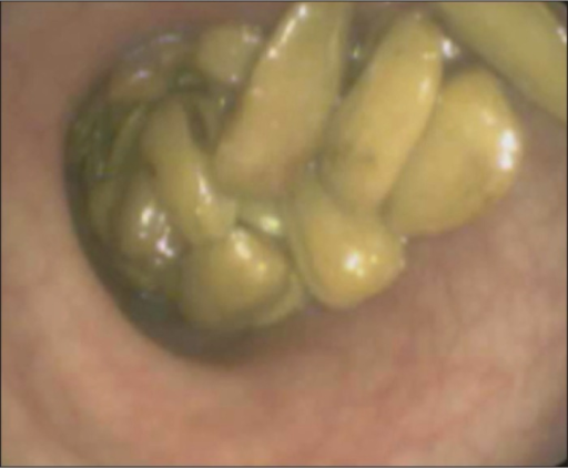 Sunflower seeds in the rectum shown on sigmoidoscopy.