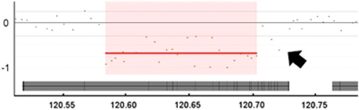 Comparative genomic hybridisation (CGH) array analysis. CGH array testing mapped the approximate position of the deletion, at coordinates 120.58–120.70 Mb, within chromosome 2. The 400K array data shown here is for Twin A. The central grey bar indicates gene PTPN4. The x axis shows the hg19 coordinates. This image is derived from the CGH Fusion software: InfoQuant Ltd (London, UK). Note that the segmentation algorithm used here may have underestimated the distal extent of the deletion (see arrow). Within the ISCN terminology, the deletion was reported as extending from 120,584,760 to 120,726,563.