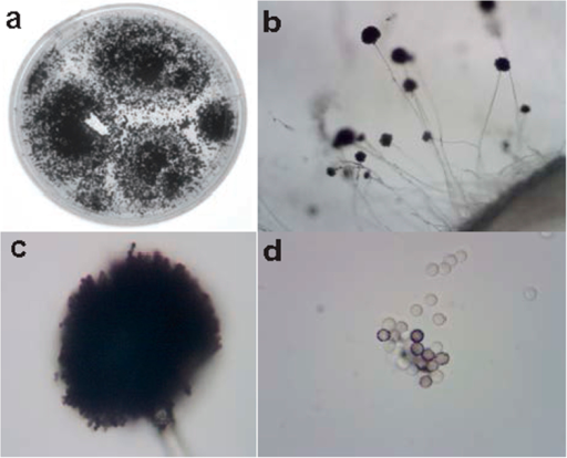Isolate Chapel SA-3 colonies and spores.The fungus was grown on potato dextrose agar in a petri dish (a) and observed under the light microscope at 4X, and 40X magnification ((b,c), respectively). The spores were separated and examined at 100X magnification (d).