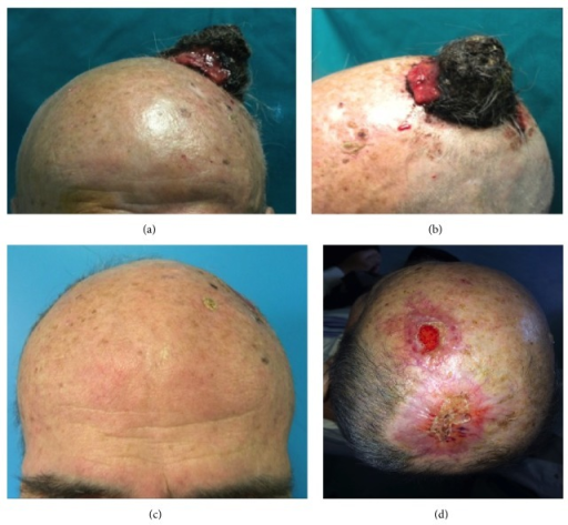 Patient of group B: (a) preoperative appearance with big lesion, (b) detail of the lesion, (c) postoperative appearance in frontal projection after 45 days, and (d) postoperative appearance in back projection after 45 days.