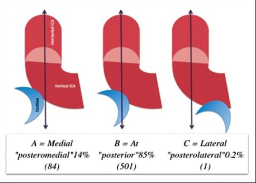 Relationship of the internal carotid artery to the Coch | Open-i