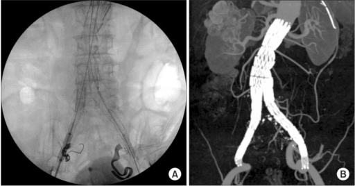 (A) Both iliac stent-graft limbs were deployed on external iliac arteries. The right internal iliac artery was embolized with coils, and adjunctive iliac stents were deployed on both external iliac arteries. (B) Both iliac stent-graft limbs were deployed on external iliac arteries. The right internal iliac artery was embolized with coils, and adjunctive iliac stents were deployed on both external iliac arteries.