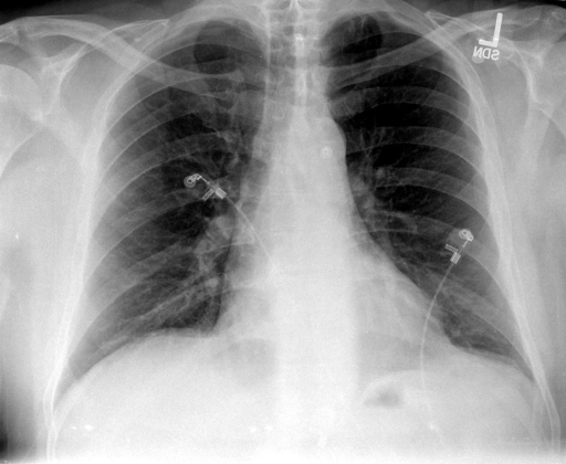 PA and lateral chest radiograph on XXXX at 02: 33 hours.