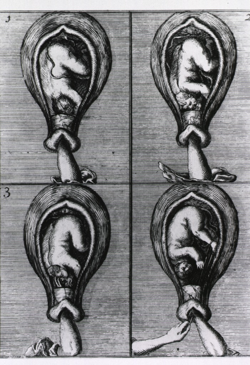 <p>Four illustrations of a fetus being extracted by hand, and with the aid of a cord looped around the feet of the infant.</p>