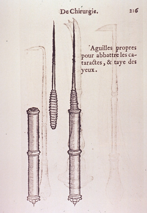 <p>A needle-like instrument for removing cataracts.</p>