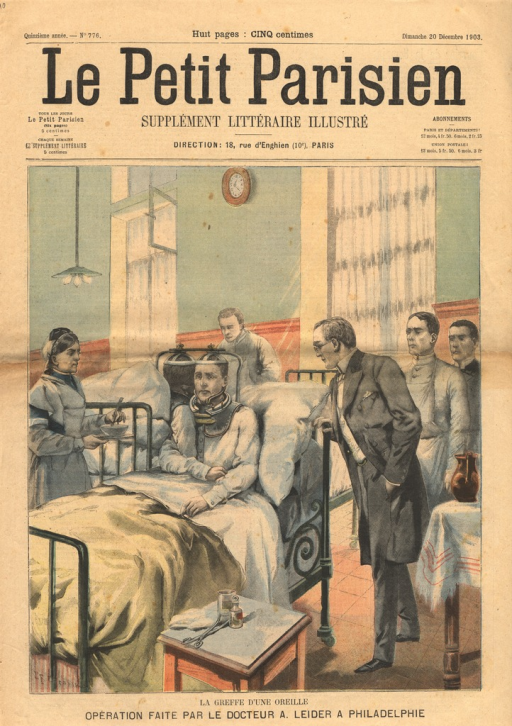 <p>An illustration of a successful ear transplant that took place in a hospital in Philadelphia in 1903.  A wealthy man had lost his ear and offered a reward of 25,000 francs to anyone who who give up his ear.  The surgeon, Andrew Leider, is shown hovering over the beds of the two patients.  The two patients are seated next to each other in adjoining beds, their heads joined by and encased in an appratus.</p>