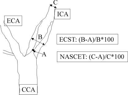 Angiographic Methodology Of Grading Carotid Stenosisgra Open I