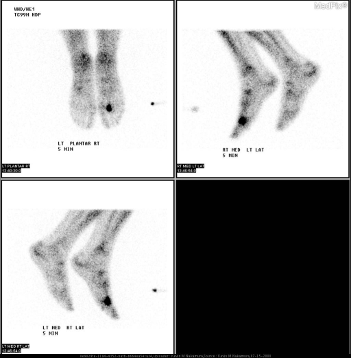 Multiple delayed planar bone scan images of the feet are remarkable for focal, intensely increased uptake in the right 2nd metatarsal head.