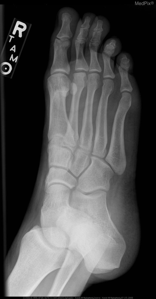 There is flattening and sclerosis of the right 2nd metatarsal head.