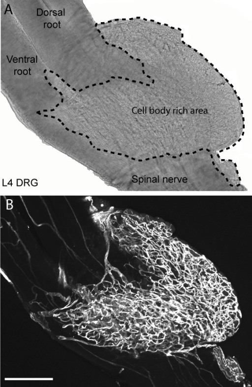 Whole mount preparation showing the vascularization of the cell body rich area of the dorsal root ganglia (DRG) vs. the dorsal and ventral roots and sciatic nerve at L4 in the C3H mouse. Bright-field photomicrograph of a whole-mount L4 DRG preparation for anatomical reference. Dashed line demarks the cell body-rich area from the sciatic nerve and dorsal and ventral spinal roots (A). Representative confocal micrograph of a mouse L4 DRG labeled with the endothelial cell marker CD31 showing the marked difference in the density of the vascular supply within the sensory ganglia as compared to the corresponding spinal nerve and dorsal root (B). This dense vascularization of the DRG along with the large fenestrations of the blood vessels in the DRG may partially explain why certain neurotoxics preferential accumulate in the DRG and produce a primarily sensory vs. motor neuropathy. The confocal image in (B) was assembled from 280 optical sections acquired at 0.5 μm z-plane intervals so that the total z stack is 140 μm-thick. Scale bar = 100 μm.