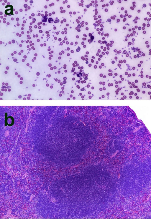 Confirmation of hematologic reconstitution of mice that were lethally irradiated and then transplanted with donor bone marrow cells; magnification, ×100.a: Wright-Giemsa stained peripheral blood smear from a C3KO animal 14 weeks after bone marrow transplant from a WT mouse. Note presence of all three cell lines (erythrocytes, leukocytes, platelets). b: Hematoxylin and eosin stained spleen section from a C3KO mouse 14 weeks after transplantation from a WT animal. Note normal appearing lymphatic nodules.