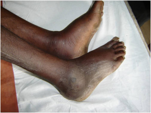 Bilateral ankle swelling.