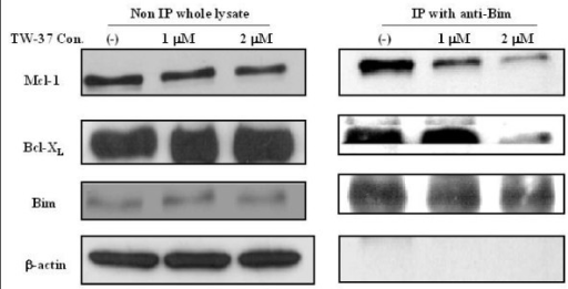 Immunoprecipitation and western-blot analysis of heterodimerization interaction by TW-37 between anti-apoptosis and pro-apoptosis Bcl-2 family proteins. WSU-FSCCL cells were treated with 1 or 2 μM of TW-37 for 24 hr, lysed and 300 μg of whole cell lysate was immunoprecipitated with anti-Bim followed by Western-Blot with anti-Mcl-1, anti-Bcl-XL, anti-Bim and anti β-actin.