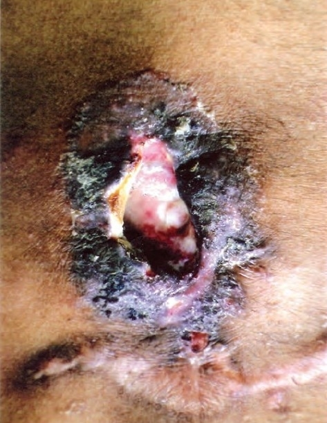 Large oval ulcer over left lower chest 6.5 × 4.5 cms with undermined edges having yellowish slough and serous discharge.