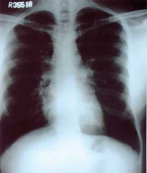 Normal chest radiograph film without any mediastinal lymphadenopathy.