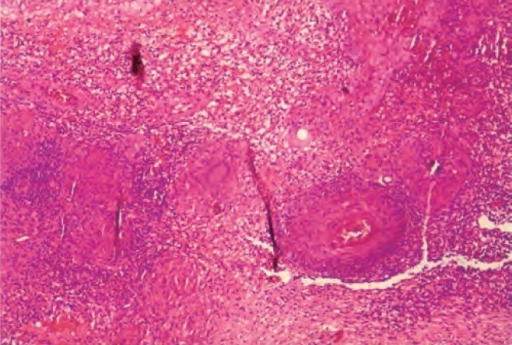 Biopsy from the ulcer edges shows skin tissue showing granulomas consisting of epitheliod cells, Langhan's type of giant cells, lymphocytes and macrophages.