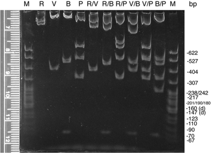 Mapping gel (5% 29:1 polyacrylamide, 1 × TBE) separating restriction enzyme fragments of plasmid DNA containing a 2.6-kb insert of wild-type D. melanogaster DNA from the dusky area of the genome. Aliquots of the same digests separated on the agarose gel (Figure 3) were separated by nondenaturing polyacrylamide minigel electrophoresis. Only the gel with digests of the plasmid with the insert with orientation A is shown. DNA in these 1-mm-thick gels was stained with ethidium bromide, destained in 1 × TBE, and visualized and digitally photographed as described above (Figure 3). Migration of standard marker fragments (M; MspI-digested pBR322) was measured (using the ruler pictured or an external one), and each student constructed a standard curve for the gel. The refined resolution and extrapolated sizes of the small fragments (<600 bp) confirmed fragments detected on the agarose gel as well as helped detect doublets and very small fragments such as the BamHI-digested fragments at approximately 70 bp. This photograph (made available online for student use) was enhanced (contrast and brightness) using Adobe Photoshop.