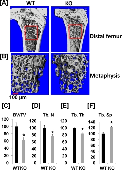 Ephrin B1 deletion in cells of myeloid lineage decreases trabecular bone.[A]: Longitudinal section of μ-CT images of distal femurs of WT and KO mice. The metaphysis of distal femurs were selected for analyses of trabecular bone parameters by μ-CT. [B]: μ-CT images of trabecular bone of the distal metaphysis of the femurs. [C–F]: Quantitative measurements of trabecular bone at the metaphysis of distal femurs. [C]: Percentage change of trabecular bone volume/total bone volume (BV/TV) of the distal femur of KO mice as compared to WT littermate controls. [D]: Percentage change of trabecular number (Tb. N) of the distal femur of KO mice as compared to WT littermate controls. [E]: Percentage change of trabecular thickness (Tb. Th) of the distal femur of KO mice as compared to WT littermate controls. [F]: Percentage change of trabecular separation (Tb. Sp) of the distal femur of KO mice as compared to WT littermate controls. Values are expressed as mean ± SEM (n = 8). A star presents statistical significance (P<0.05) as compared to WT littermate controls.